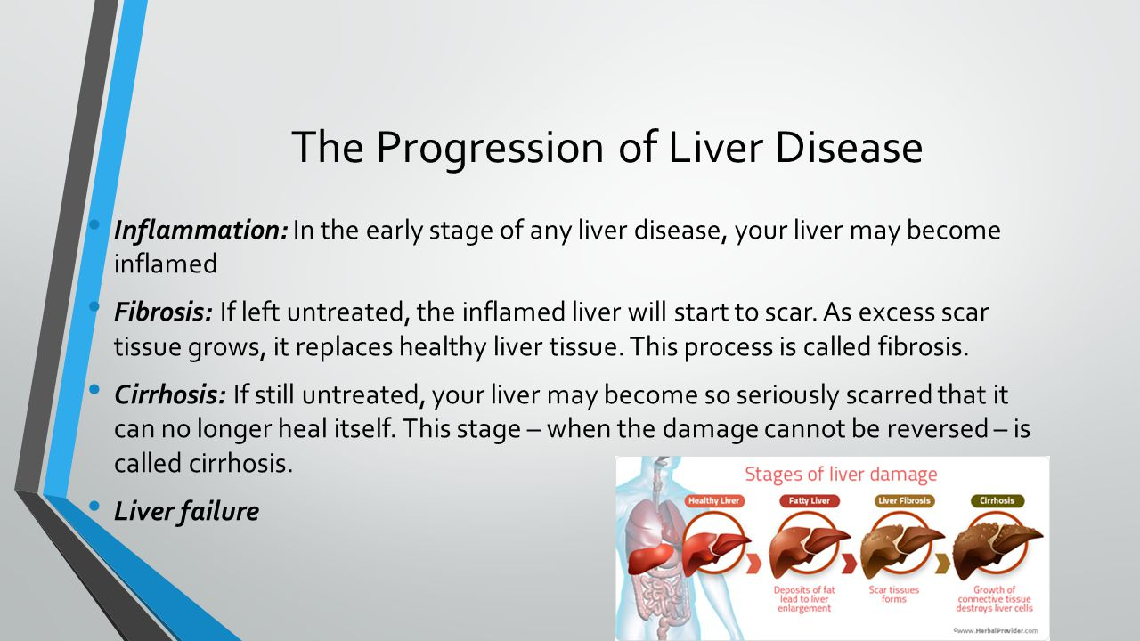 The Progression of Liver Disease