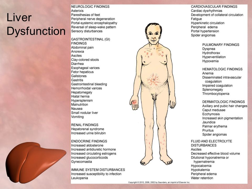 Care of Patients with Liver Problems - ppt download