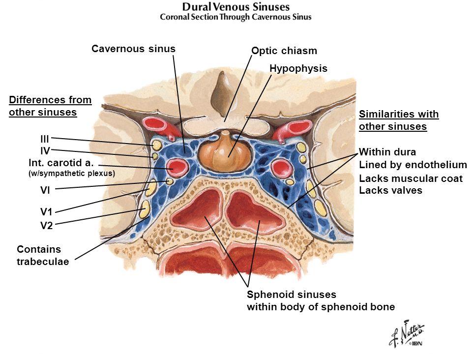 Dental Gross Anatomy Case 1 Cavernous Sinus Thrombosis Ppt Video