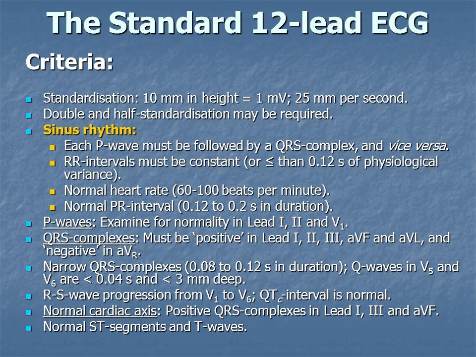 The Standard 12-lead ECG Criteria: