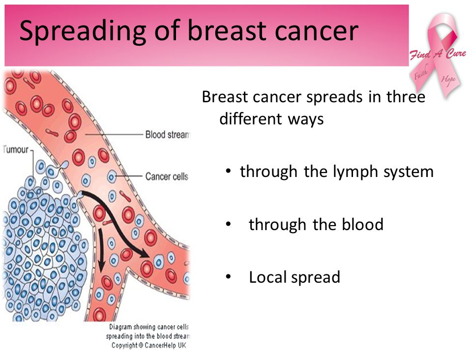Spreading of breast cancer