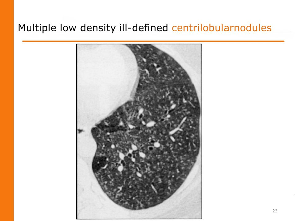Multiple low density ill-defined centrilobularnodules