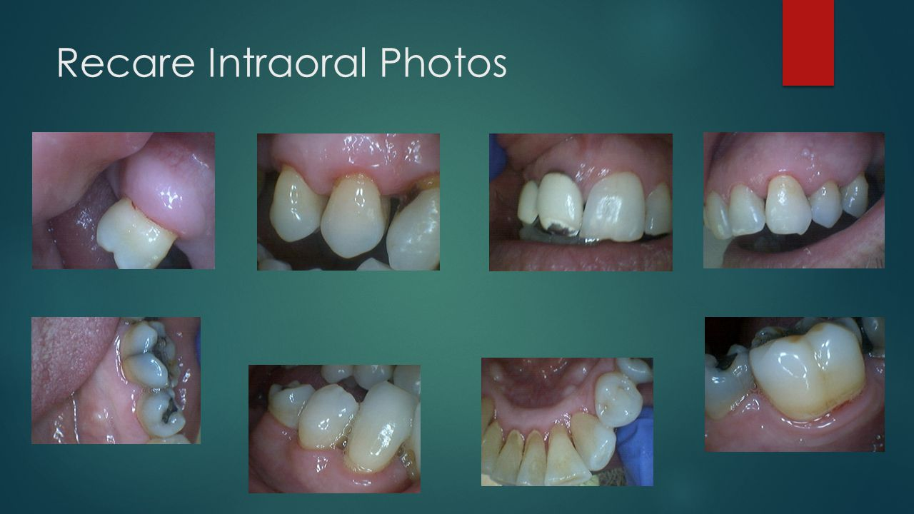 Recare Intraoral Photos