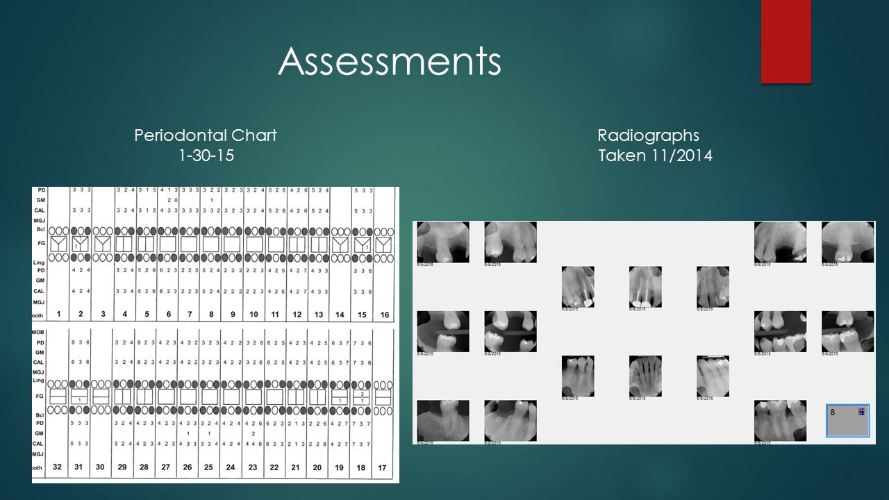 Assessments Periodontal Chart Radiographs Taken 11/2014