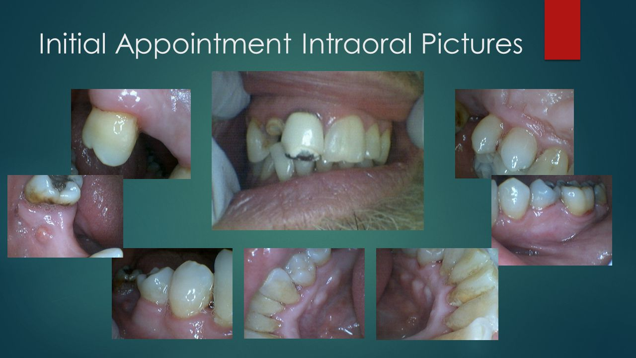 Initial Appointment Intraoral Pictures