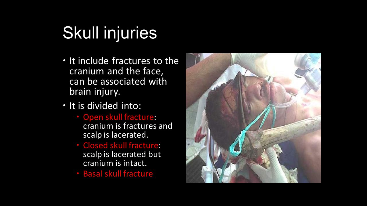 Skull injuries It include fractures to the cranium and the face, can be associated with brain injury.