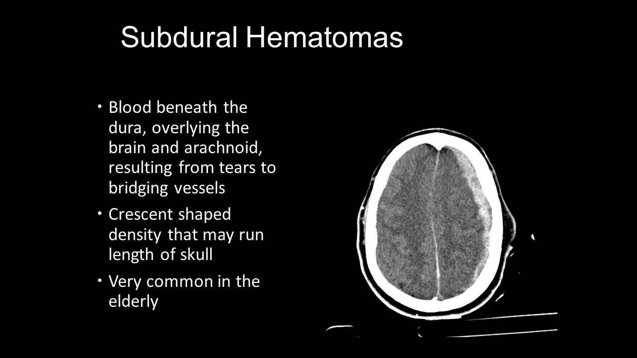 Subdural Hematomas Blood beneath the dura, overlying the brain and arachnoid, resulting from tears to bridging vessels.
