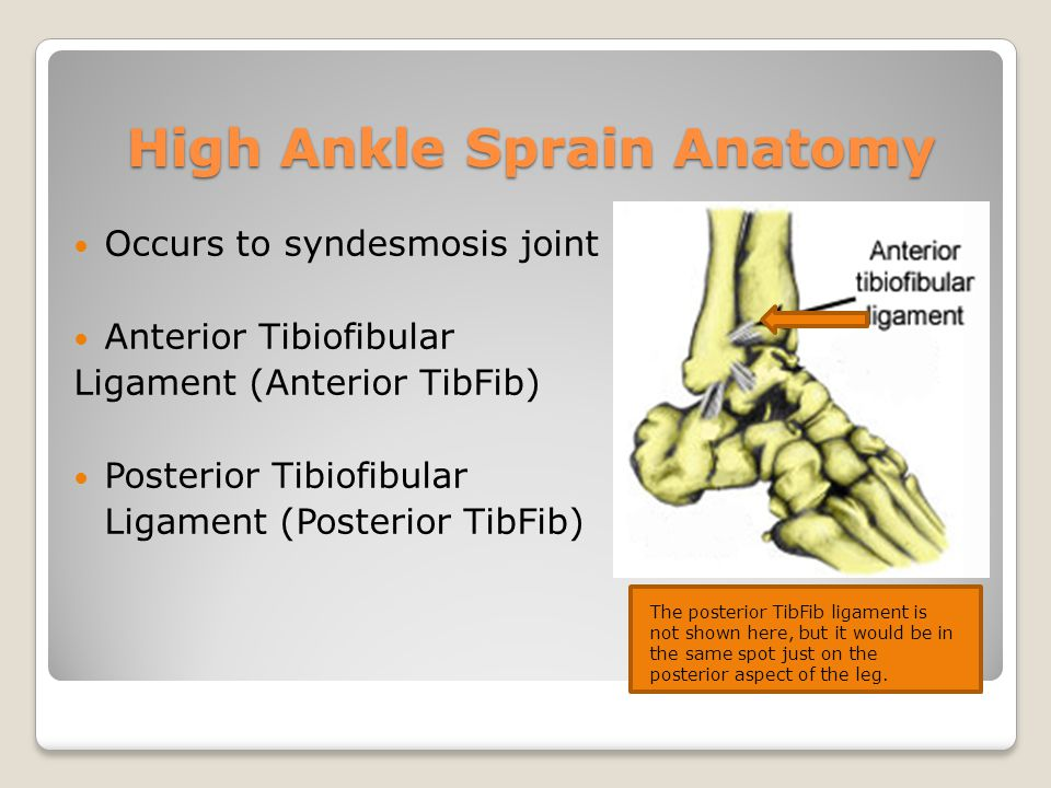 Knowing Ankle Sprains For The Athlete Ppt Video Online Download