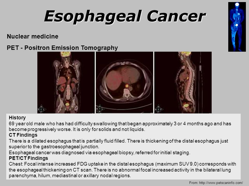 Esophageal Cancer Ppt Video Online Download