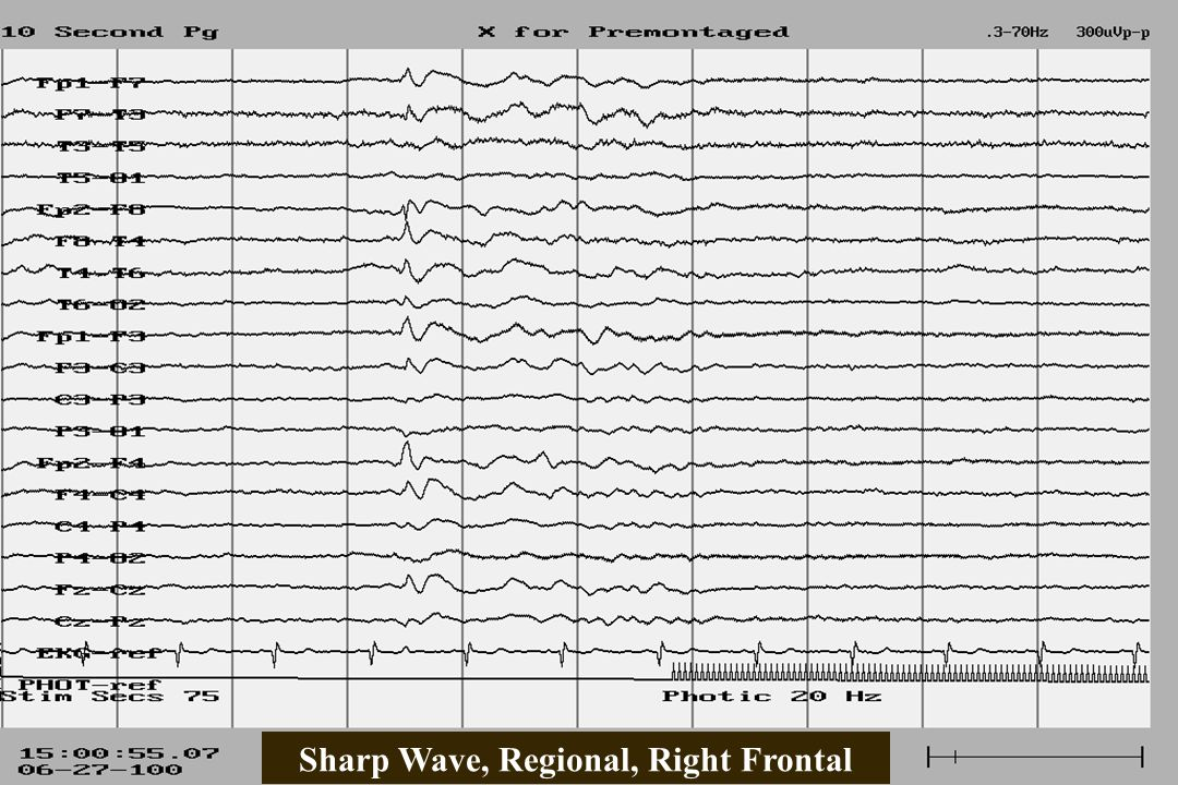 Sharp Wave, Regional, Right Frontal