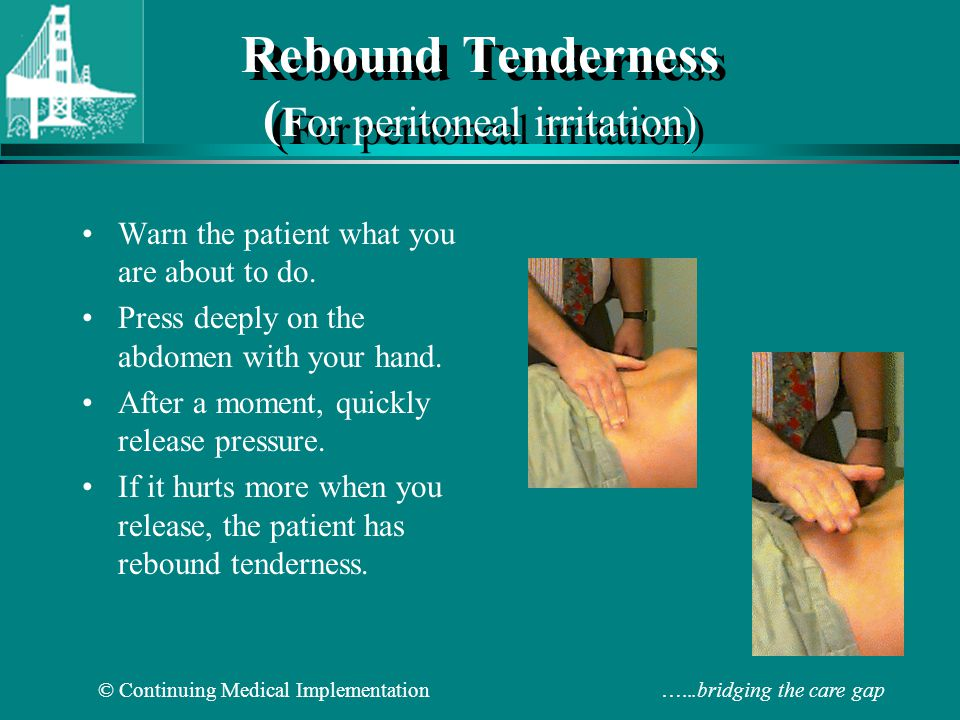 Location Of The Appendix >> Abdominal Physical Examination - ppt video online download