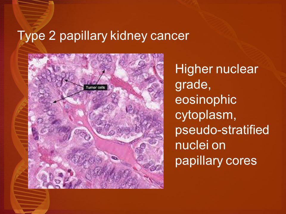 Molecular Biology Of Kidney Cancers Ppt Video Online Download