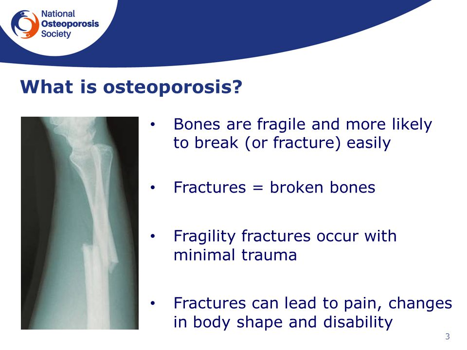 35++ Osteoporosis disease meaning in hindi viral