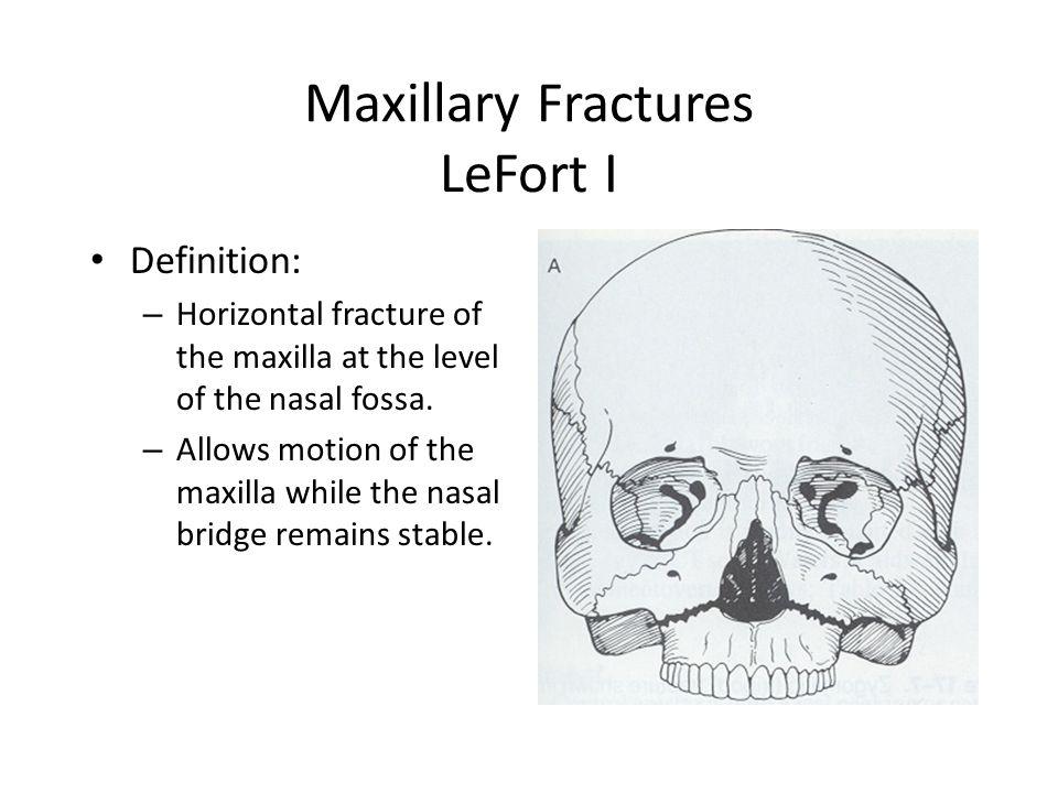 19 maxillary fractures lefort i