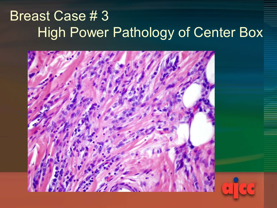 Breast Case # 3 High Power Pathology of Center Box