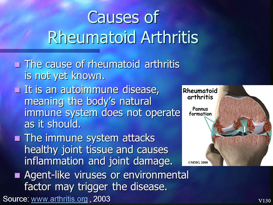 Causes of Rheumatoid Arthritis