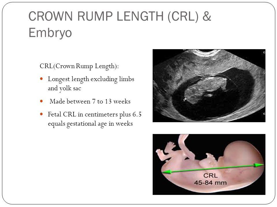 Obstetrical Ultrasound Ppt Video Online Download