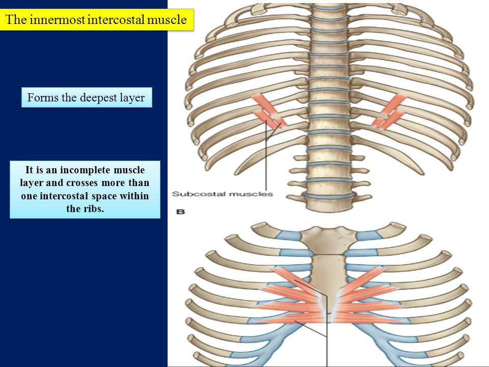 The innermost intercostal muscle