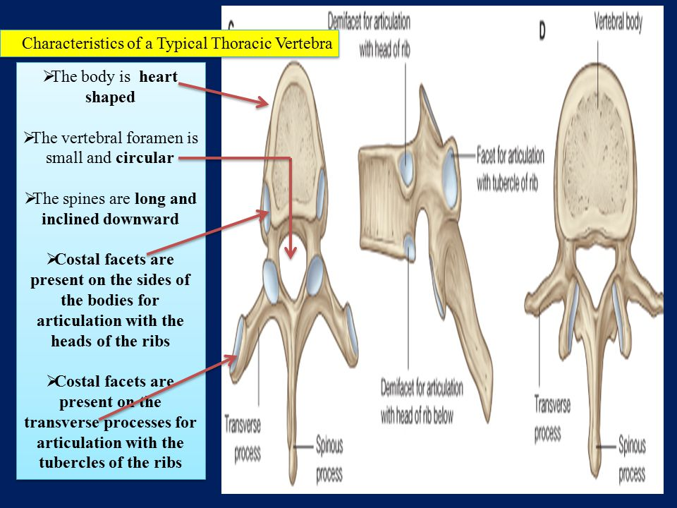 Characteristics of a Typical Thoracic Vertebra