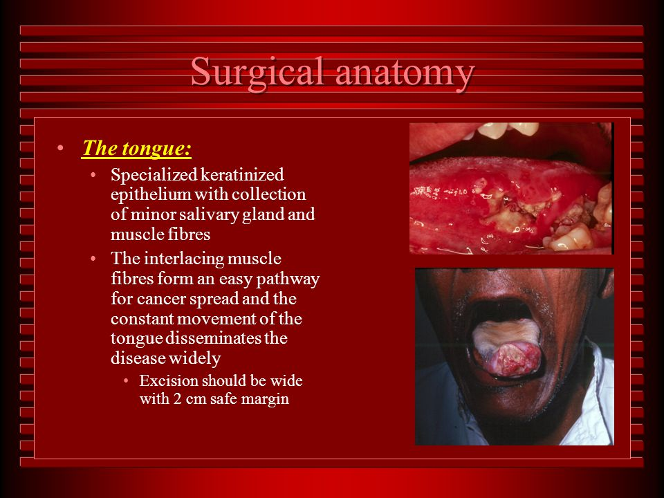 Tumours of the head and neck - ppt download