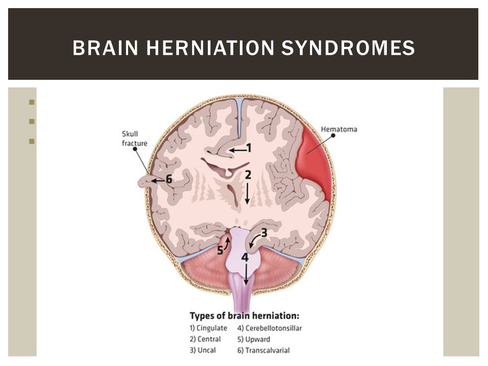 brain herniation syndromes