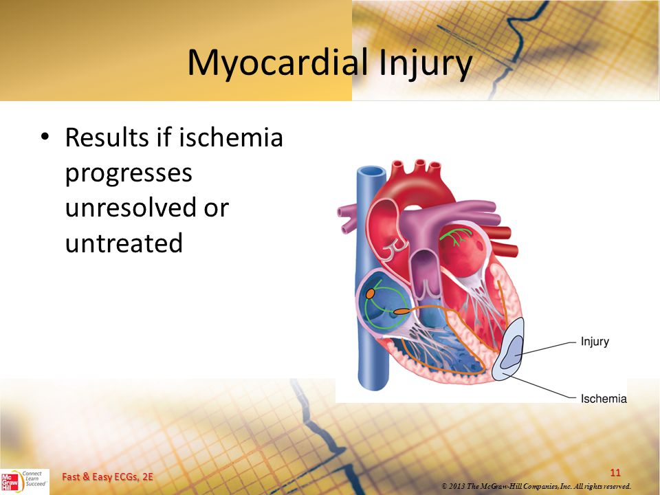 Myocardial Injury Results if ischemia progresses unresolved or untreated