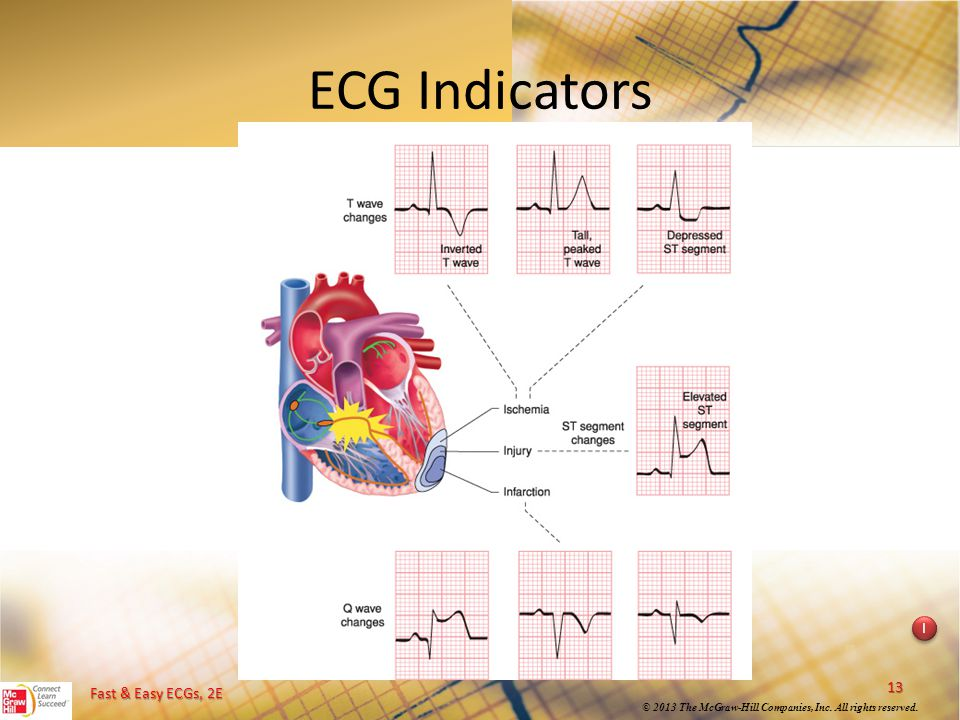 ECG Indicators Instructional point: