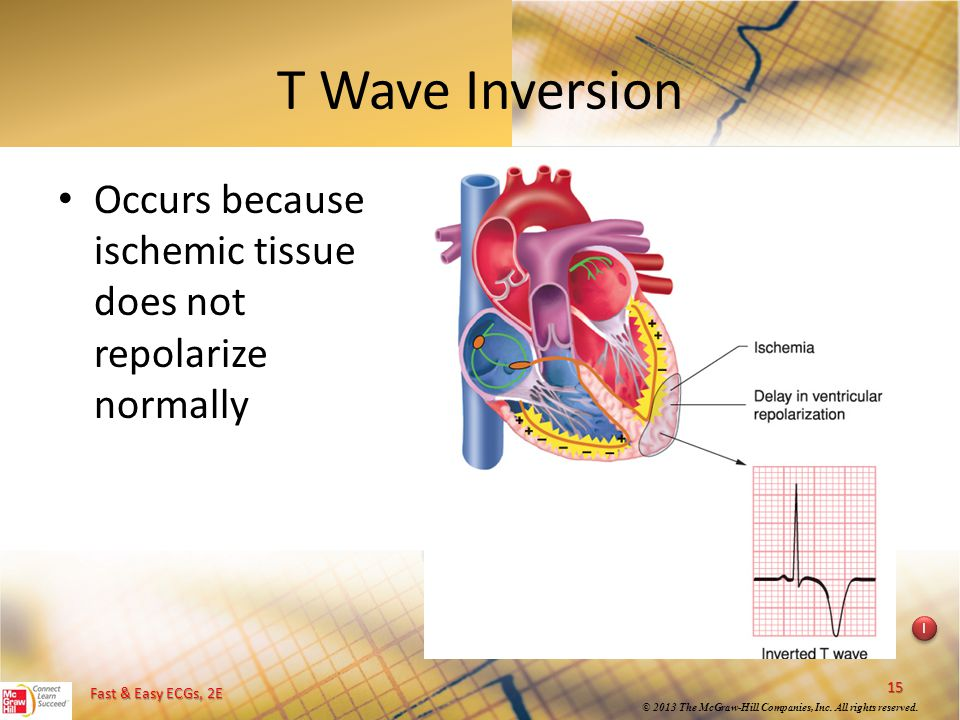 T Wave Inversion Occurs because ischemic tissue does not repolarize normally. Instructional point: