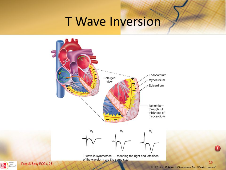 T Wave Inversion Instructional point: