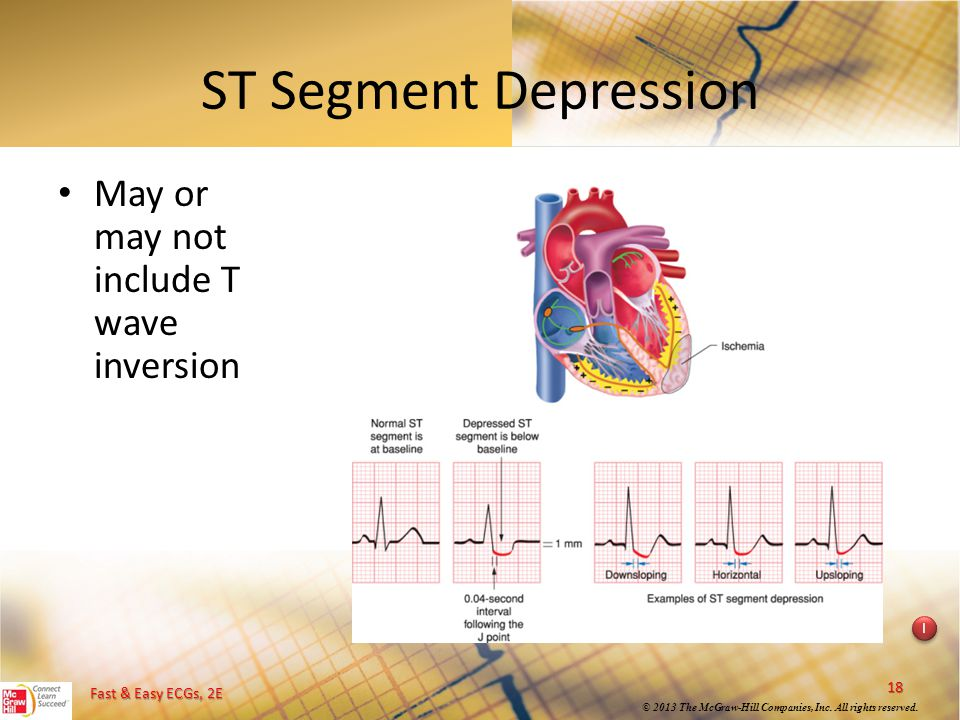 ST Segment Depression May or may not include T wave inversion