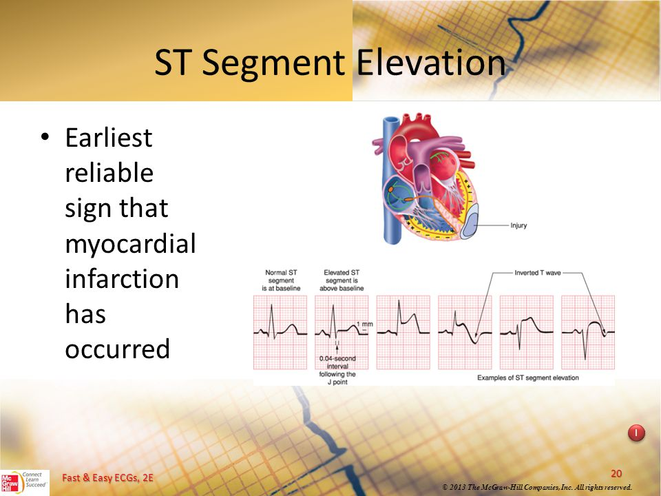 ST Segment Elevation Earliest reliable sign that myocardial infarction has occurred. Instructional point: