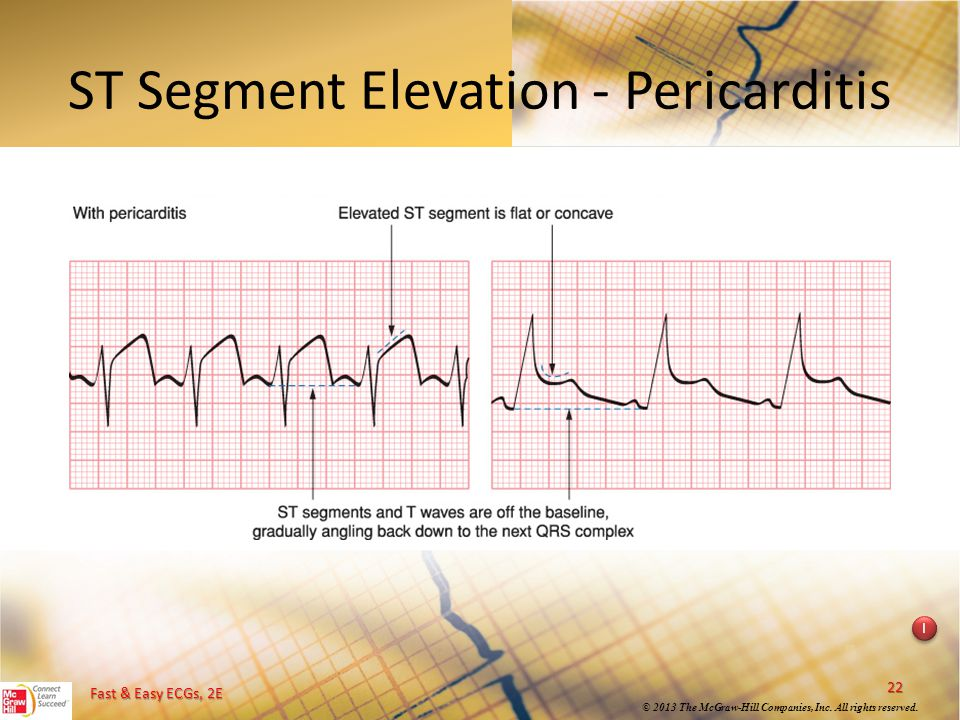 ST Segment Elevation - Pericarditis