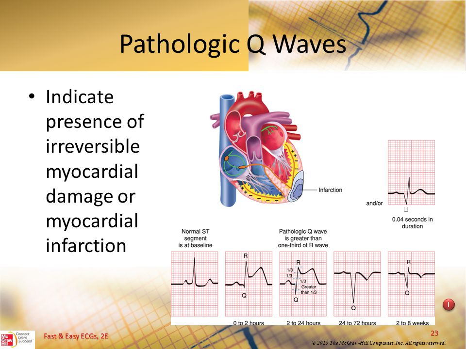Pathologic Q Waves Indicate presence of irreversible myocardial damage or myocardial infarction. Instructional point: