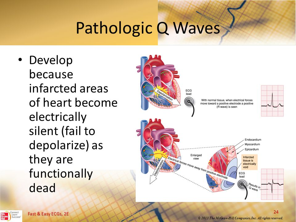 Pathologic Q Waves Develop because infarcted areas of heart become electrically silent (fail to depolarize) as they are functionally dead.