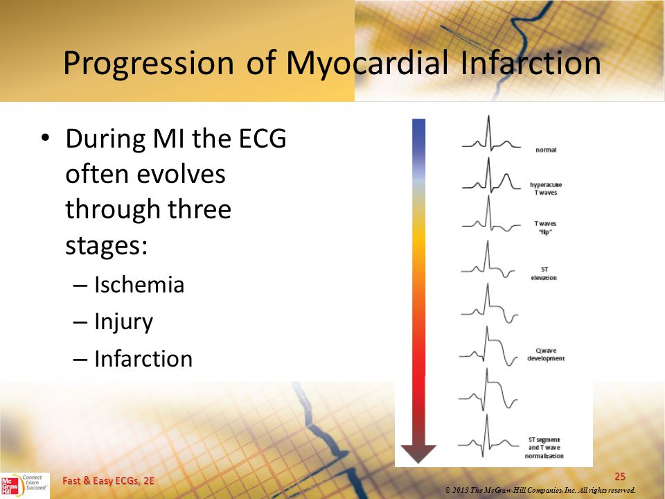 Progression of Myocardial Infarction