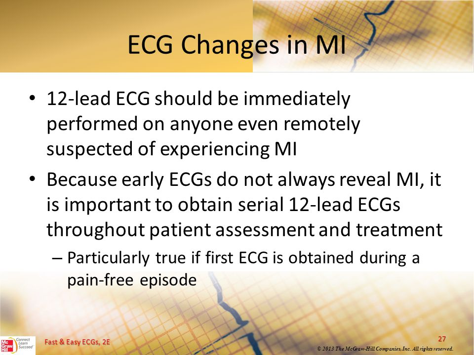 ECG Changes in MI 12-lead ECG should be immediately performed on anyone even remotely suspected of experiencing MI.