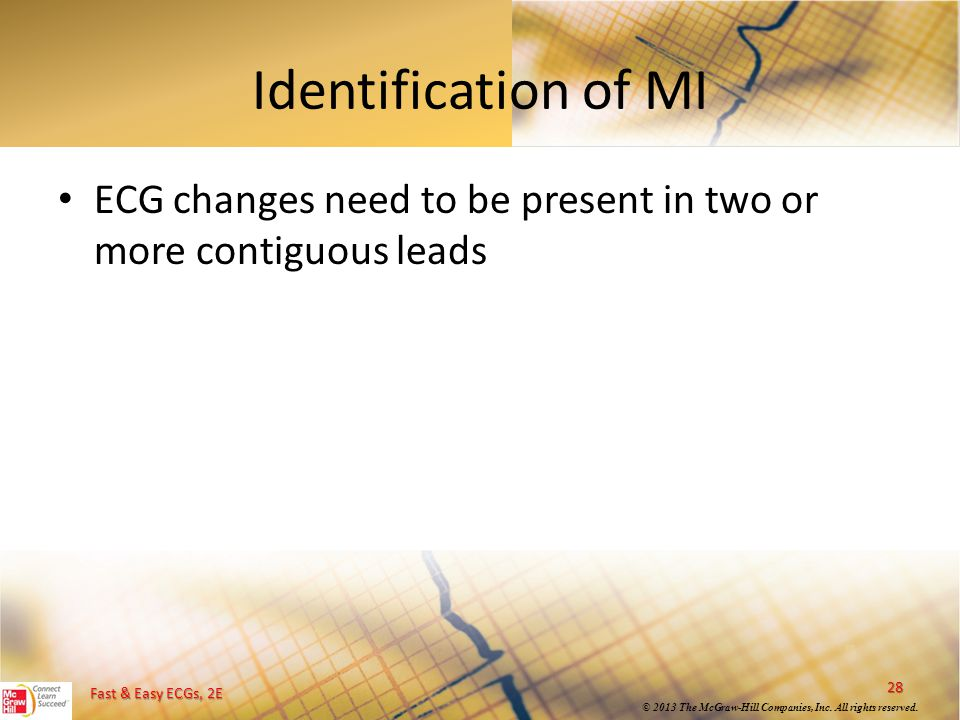 Identification of MI ECG changes need to be present in two or more contiguous leads
