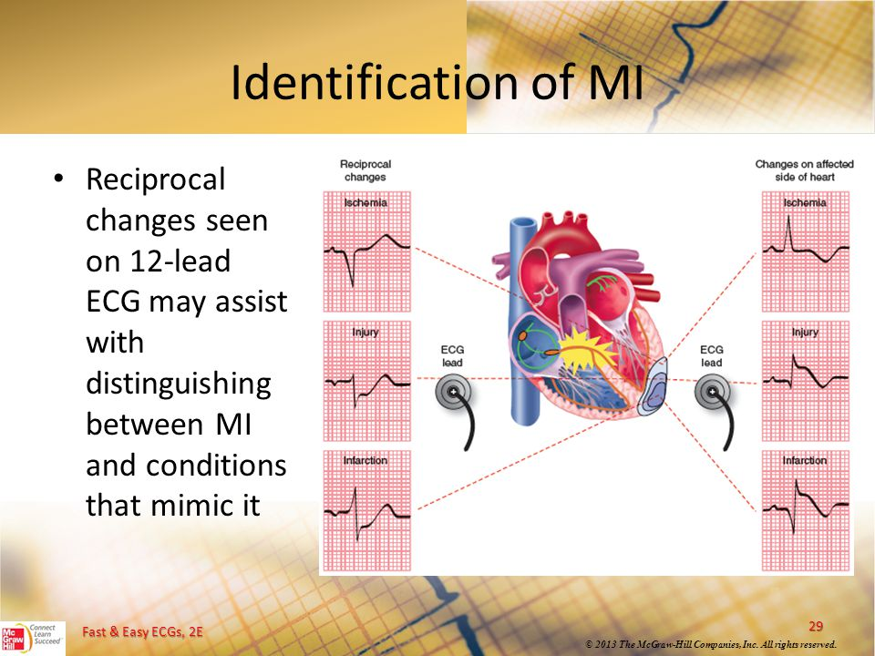 Identification of MI Reciprocal changes seen on 12-lead ECG may assist with distinguishing between MI and conditions that mimic it.
