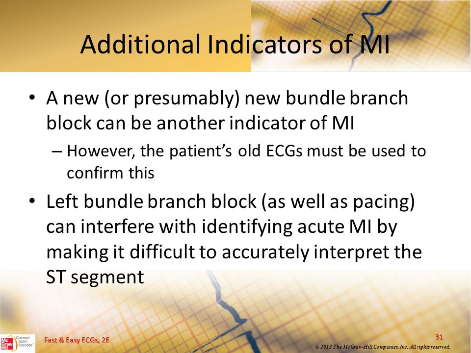 Additional Indicators of MI