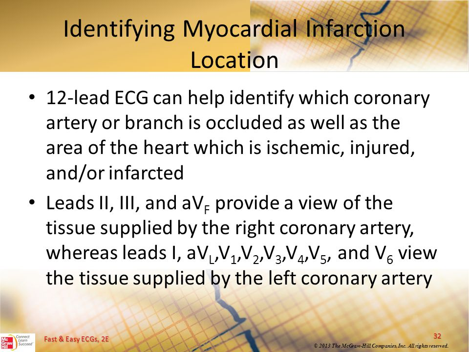 Identifying Myocardial Infarction Location
