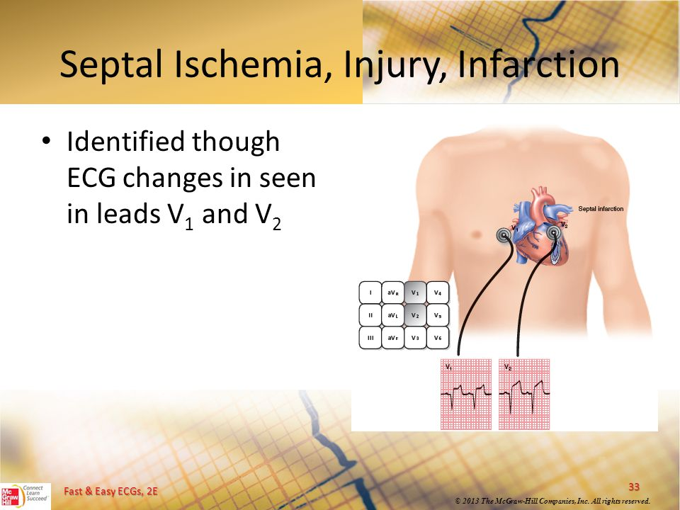 Septal Ischemia, Injury, Infarction