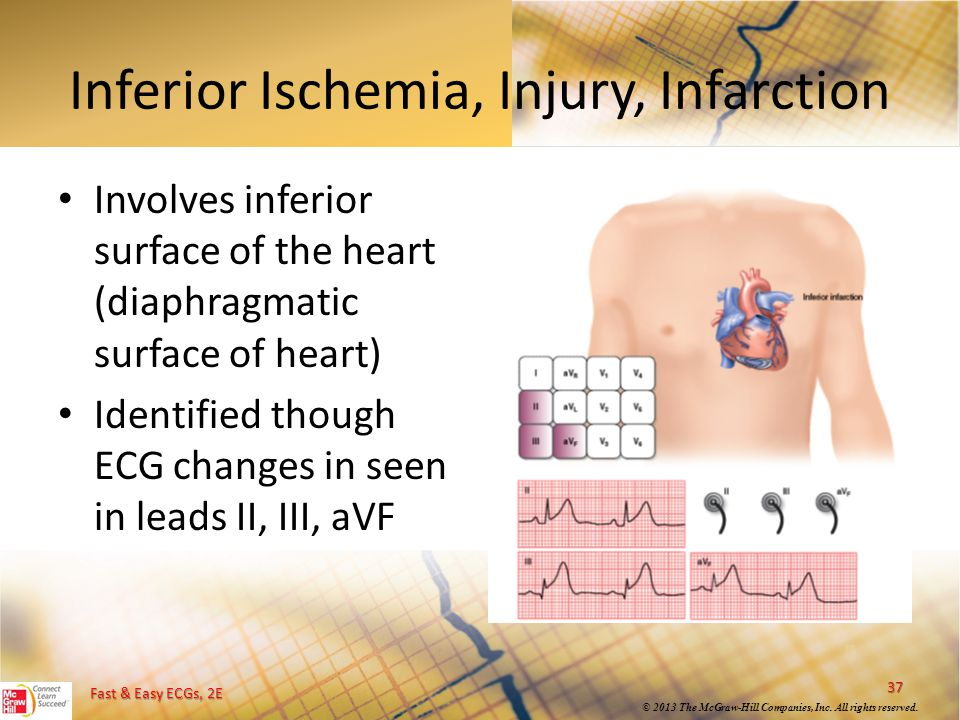 Inferior Ischemia, Injury, Infarction