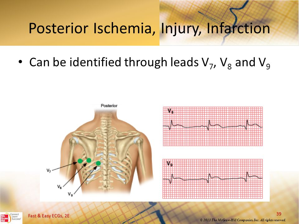Posterior Ischemia, Injury, Infarction