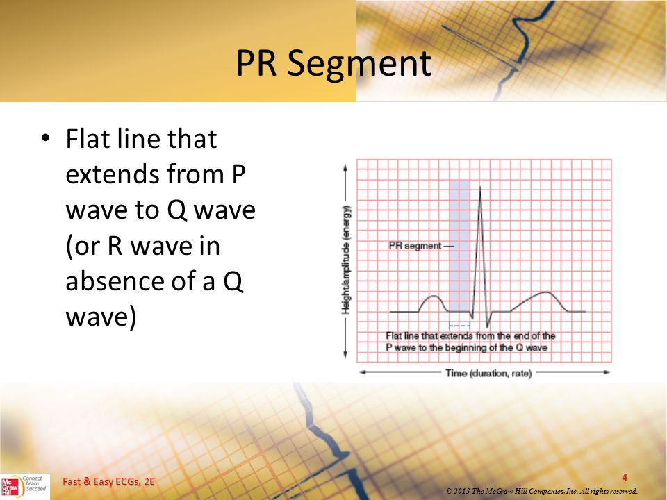 PR Segment Flat line that extends from P wave to Q wave (or R wave in absence of a Q wave)