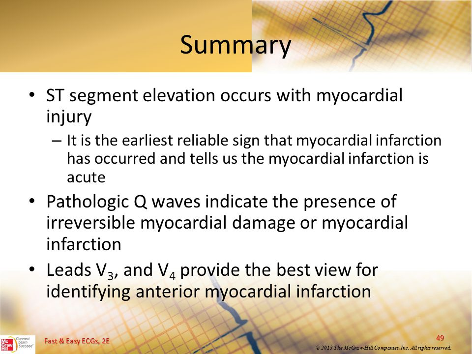 Summary ST segment elevation occurs with myocardial injury