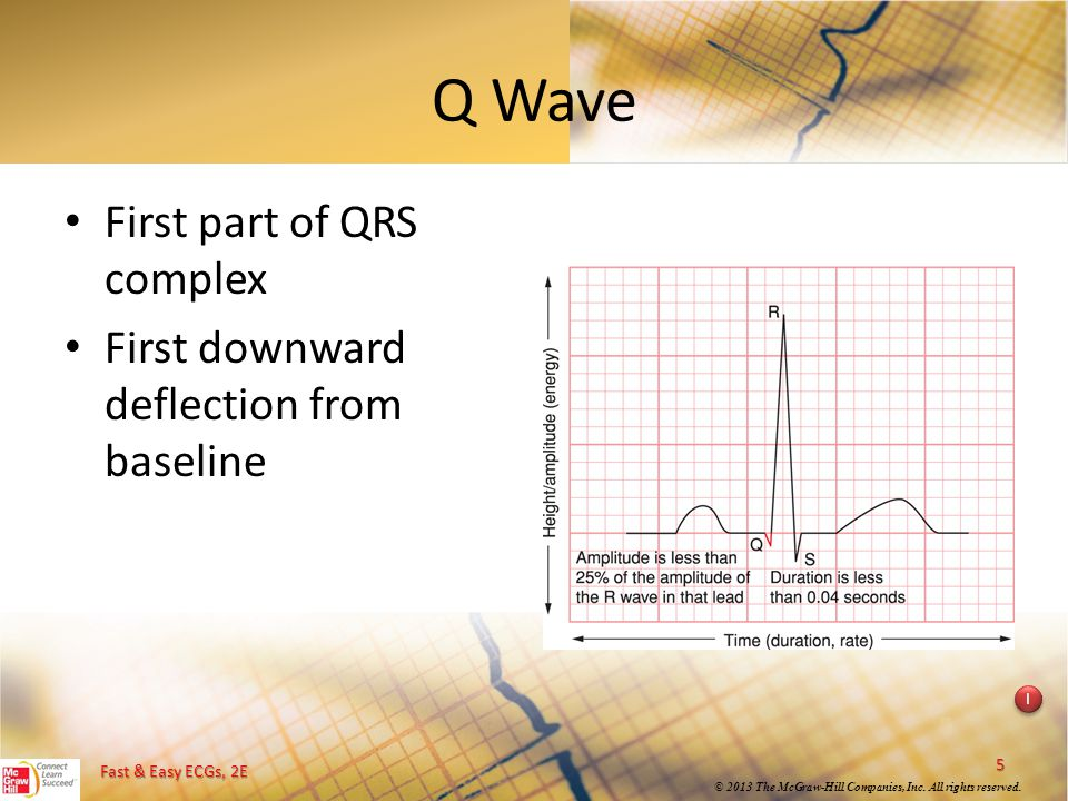 Q Wave First part of QRS complex