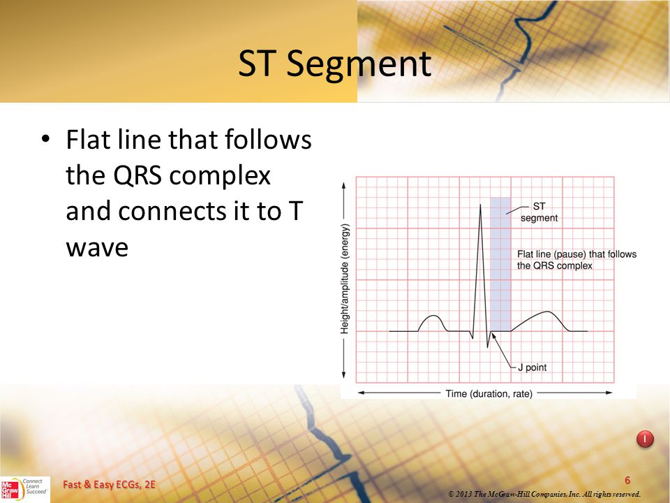 ST Segment Flat line that follows the QRS complex and connects it to T wave. Instructional point: