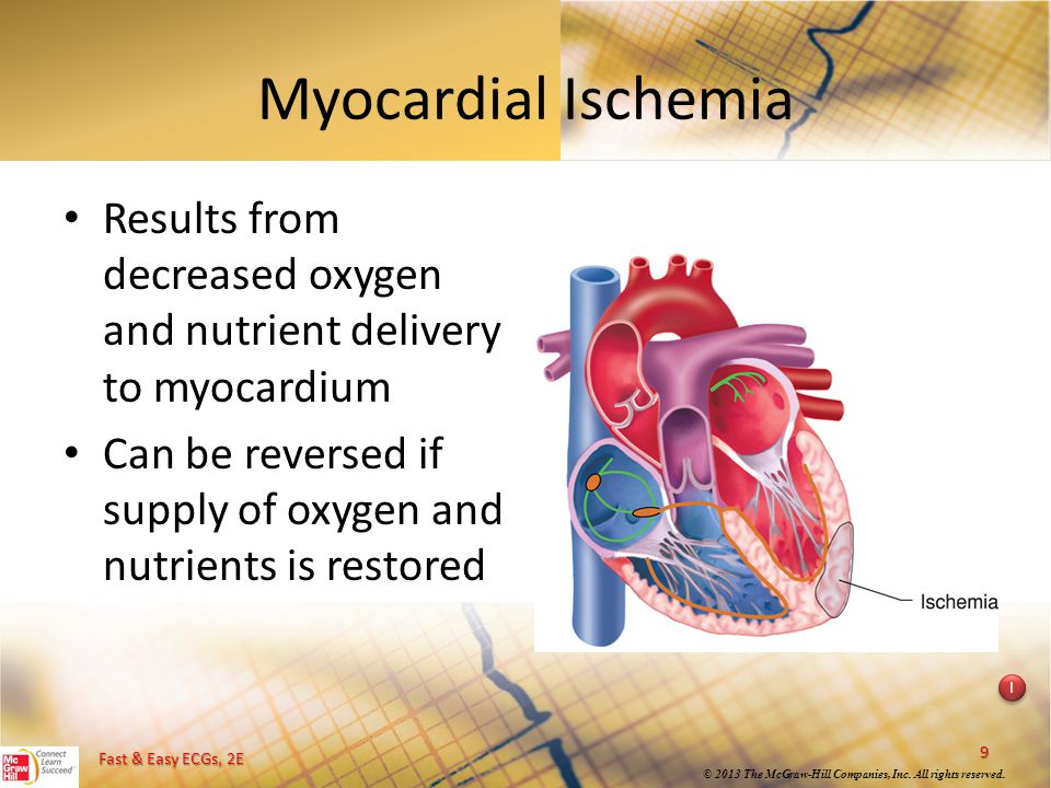 Myocardial Ischemia Results from decreased oxygen and nutrient delivery to myocardium. Can be reversed if supply of oxygen and nutrients is restored.