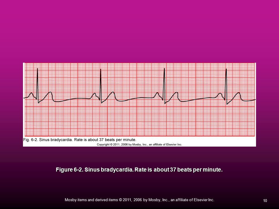 Figure 6-2. Sinus bradycardia. Rate is about 37 beats per minute.