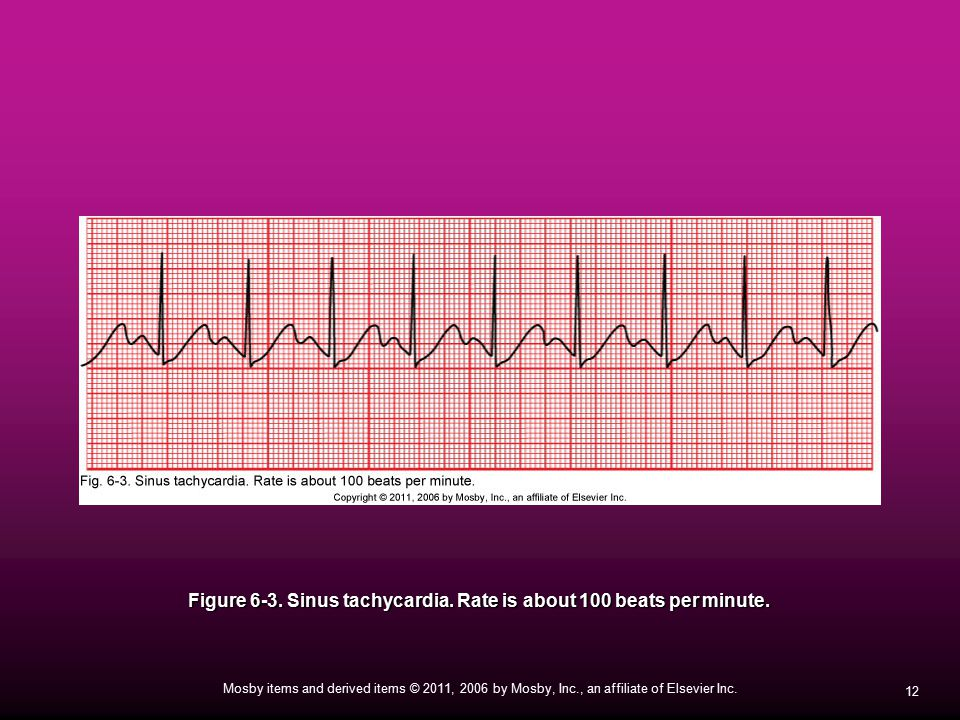 Figure 6-3. Sinus tachycardia. Rate is about 100 beats per minute.